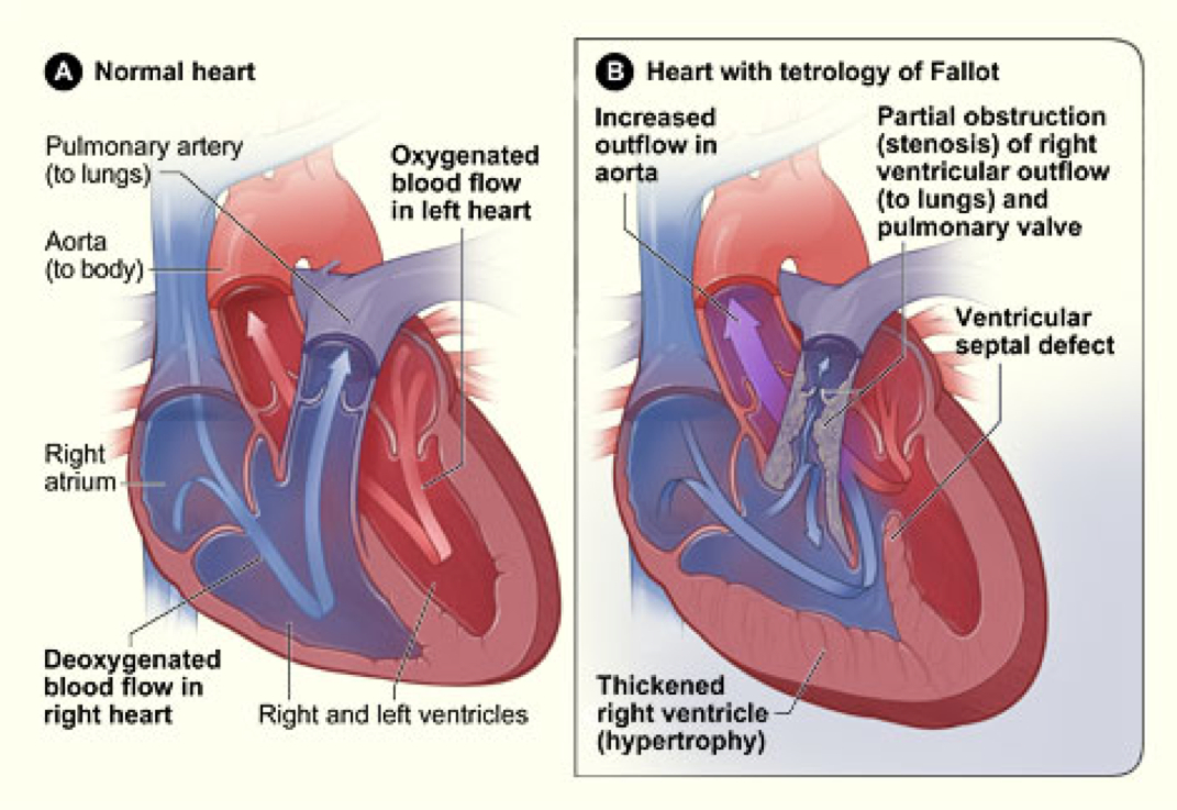 steroid congestive heart failure